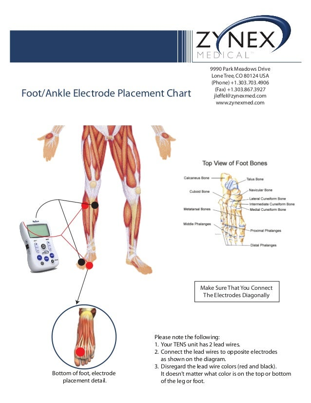 Zmpczm016000 12 15 Foot Ankle Electrode Placement Chart