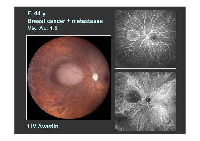 Zografos anti veg fs in ocular oncology