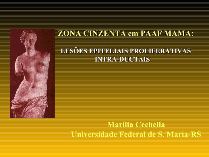 ZONA CINZENTA em PAAF MAMA:   LESÕES EPITELIAIS PROLIFERATIVAS INTRA-DUCTAIS Marília Cechella Universidade Federal de S. M...