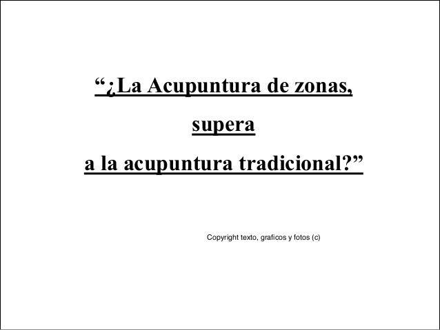 """""""¿La Acupuntura de zonas,           superaa la acupuntura tradicional?""""            Copyright texto, graficos y fotos (c)"""