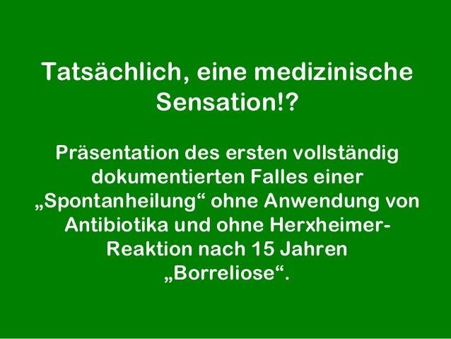"""Tatsächlich, eine medizinische         Sensation!?  Präsentation des ersten vollständig     dokumentierten Falles einer""""Sp..."""