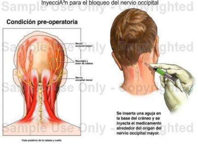 Bloqueo occipital