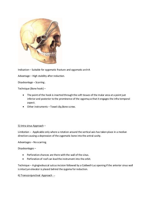 Zygomatic complex fractures