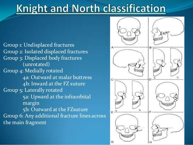 Type 1: No significant displacementType 2: Isolated fractures of zygomatic archType 3: Fractures rotated around a vertical...