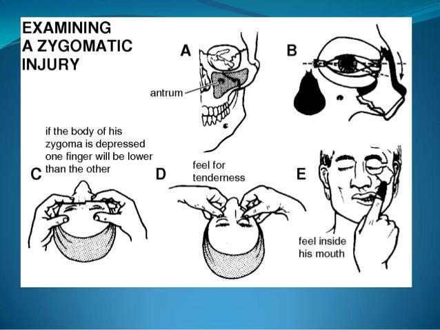 •Periorbital edema•Periorbital ecchymosis•Flattening of malar prominence•Flattening over arch•Pain•Ecchymosis of maxillary...