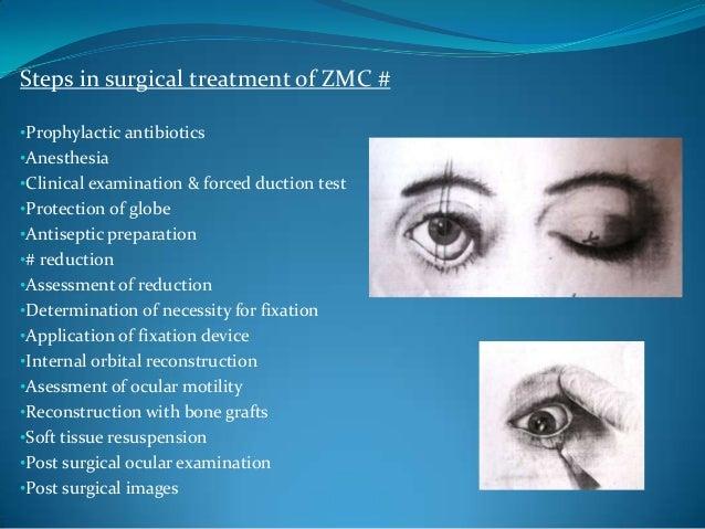 Surgical ApproachesIndirectExtra Orala. Temporalb.PercutaneousIntra Orala. Keenb. QuinDirectExtra Orala. Upper eyelidb. Su...