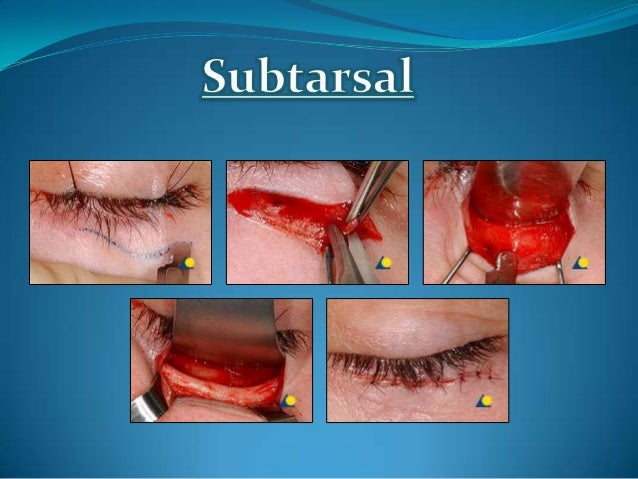  Also known as lateral coronoid approach,1977 Used for reduction of zygomatic arch #. Place 3-4 cm i/o incision along a...