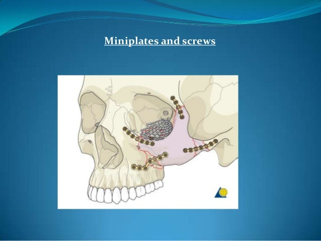 Towel clip reductionTodd G. Carter et al; Towel Clip Reduction of the Depressed Zygomatic Arch Fracture, J Oral Maxillofac...