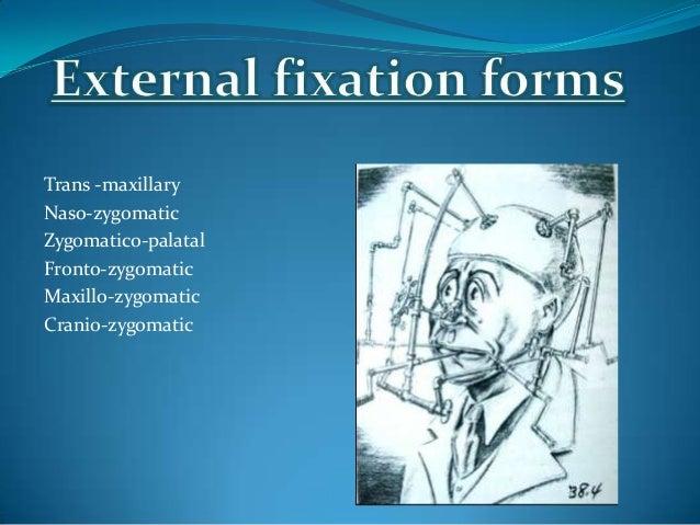 9. Manual of internal fixation-J Prein10. Mirko S. Gilardino et al;Choice of Internal Rigid Fixationmaterials in the treat...