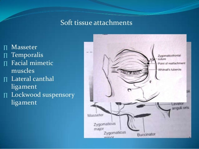 Soft tissue attachments∏ Masseter∏ Temporalis∏ Facial mimeticmuscles∏ Lateral canthalligament∏ Lockwood suspensoryligament