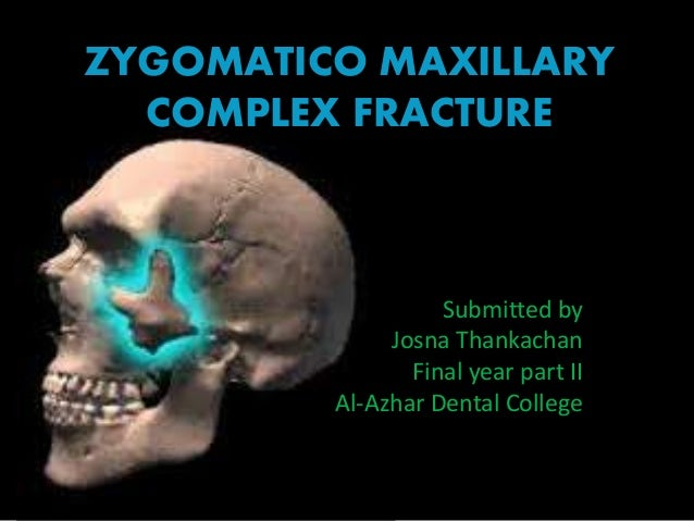 ZYGOMATICO MAXILLARY COMPLEX FRACTURE Submitted by Josna Thankachan Final year part II Al-Azhar Dental College