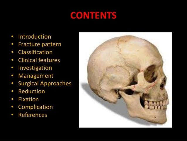 Zygomatic Bone Maxillary Process