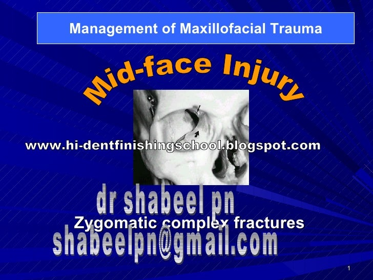 Zygomatic complex fractures Mid-face Injury Management of Maxillofacial Trauma dr shabeel pn [email_address] www.hi-dentfi...