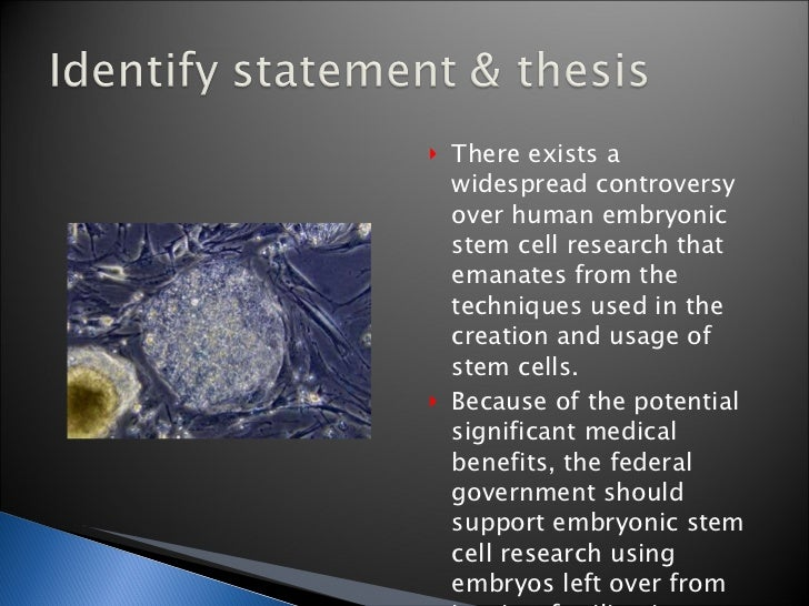 thesis statement about stem cells research To write a quality and impressive stem cell essay understanding of stem cells and the chosen topic a catchy introduction with a solid thesis statement.